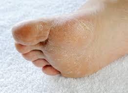 Крем Миценил – противогрибковый препарат для лечения и профилактики грибка ногтей и ног